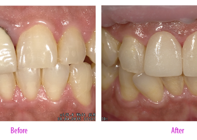 All Porcelain Crowns
