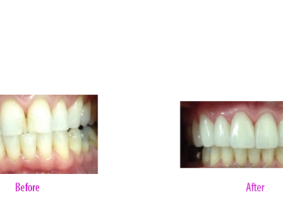 All Porcelain Veneers