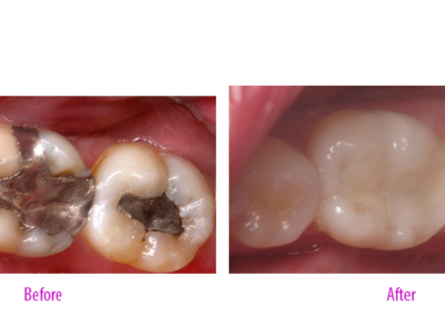 Amalgam to Composite Restoration