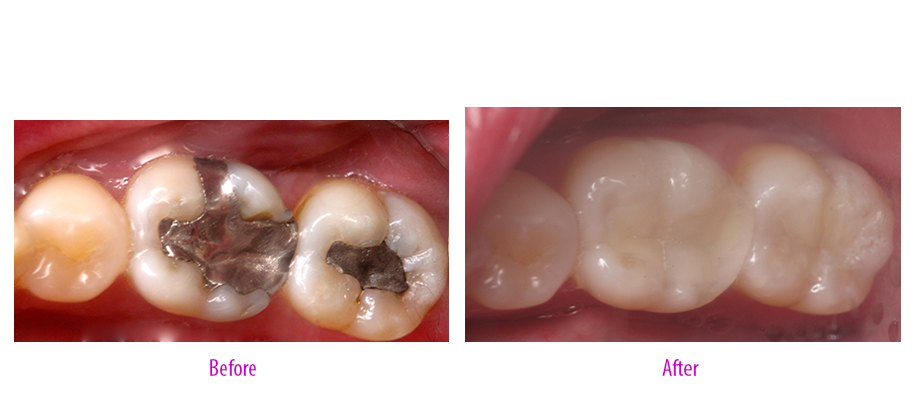 Amalgam to Composite Restoration
