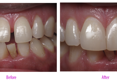 Diastema Closure (Case 1)