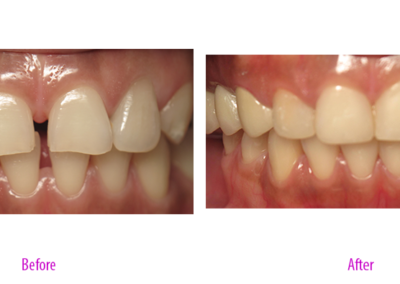 Diastema Closure (Case 2)