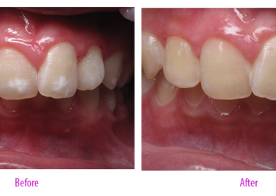 Fluorosis Treatment