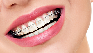 ORTHODONTIC SERVICES PHILIPPINES MAKATI